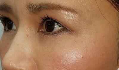 MD式眉下切開法・アイバックリムーブ法/術後1ヶ月の症例写真[アフター]