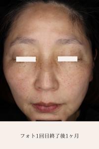 レア形成外科・美容皮膚科のシミ取り・肝斑・毛穴治療の症例写真[アフター]