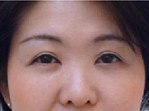 の目・二重整形の症例写真[アフター]