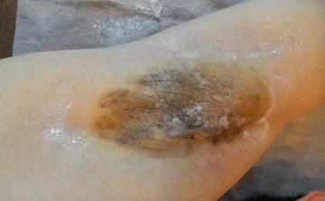 THE CLINIC NAGOYA 【ザ・クリニック名古屋】のわきが手術・多汗症治療の症例写真[ビフォー]