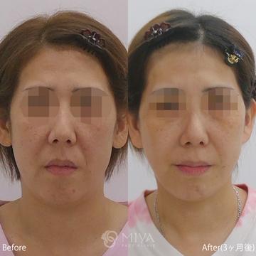 MIYAフェイスクリニックの顔のしわ・たるみの整形(リフトアップ手術)の症例写真