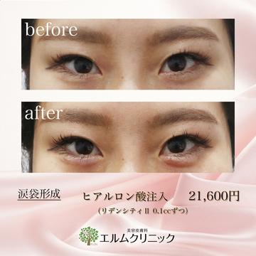 美容皮膚科  エルムクリニック京都院の目元の整形、くま治療の症例写真