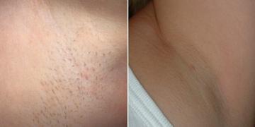 の医療レーザー脱毛の症例写真
