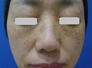 梅田フェミークリニックのシミ治療(シミ取り)・肝斑・毛穴治療の症例写真[ビフォー]