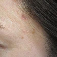 はなふさ美容皮膚科のホクロ除去・あざ治療・イボ治療の症例写真[アフター]