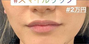 ルラ美容クリニック 高田馬場院の口もと、唇の整形の症例写真[アフター]