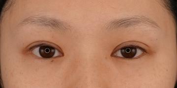 湘南美容クリニック 渋谷院の目・二重整形の症例写真[アフター]
