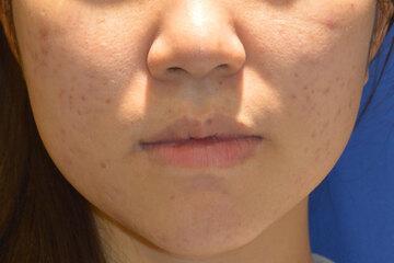 東京イセアクリニック 渋谷院のニキビ治療・ニキビ跡の治療の症例写真[アフター]