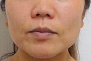 東京中央美容外科・美容皮膚科の顔の整形(輪郭・顎の整形)の症例写真[ビフォー]