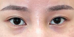 大塚美容形成外科の目・二重の整形の症例写真[ビフォー]