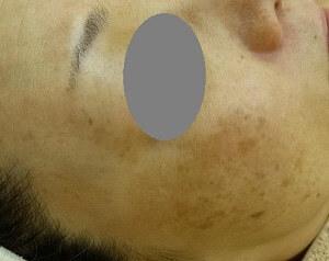 スキンコスメクリニックグループのシミ治療(シミ取り)・肝斑・毛穴治療の症例写真[ビフォー]