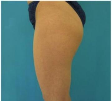 東京美容外科の脂肪吸引の症例写真[ビフォー]