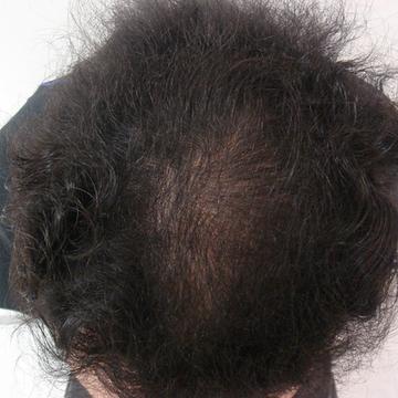 ドーズ美容外科の薄毛治療の症例写真[アフター]