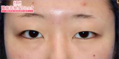 湘南美容クリニック奈良院の目・二重の整形の症例写真[ビフォー]