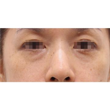 RDクリニックの目元の整形、くま治療の症例写真[アフター]