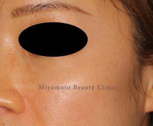 みやもと美容クリニックのシミ治療(シミ取り)・肝斑・毛穴治療の症例写真[アフター]