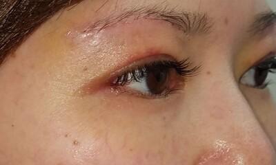 MD式眉下切開法/術後6日 抜糸前の症例写真[アフター]