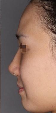 SELECT CLINIC(セレクトクリニック)の鼻の整形の症例写真[アフター]