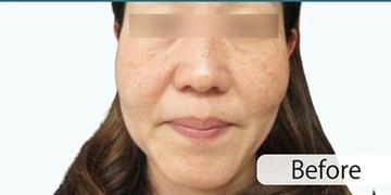 藤井クリニックのシミ取り・肝斑・毛穴治療の症例写真[ビフォー]