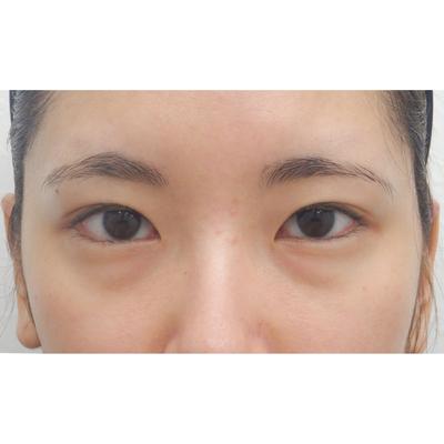 眼瞼下垂の症例写真[ビフォー]