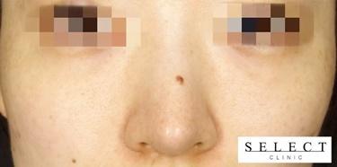 ピコスポット+ピコトーニングのシミ治療の症例写真[アフター]