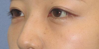 目の下の切らないたるみ取り+コンデンスリッチフェイスの症例写真[アフター]
