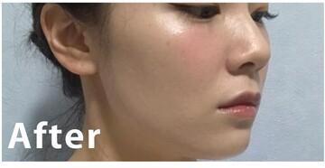 フォーシーズンズ美容皮膚科クリニックの症例写真[アフター]