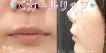 ルラ美容クリニックの口もと、唇の整形の症例写真[ビフォー]