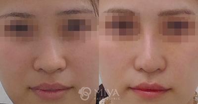 鼻プロテーゼと鼻翼縮小術で鼻筋の通った自然で理想的な鼻への症例写真
