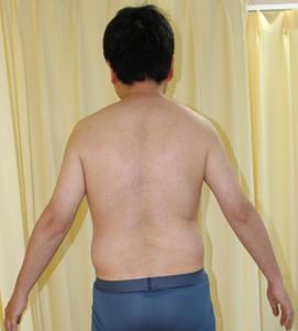 千葉中央美容形成クリニックの痩身、メディカルダイエットの症例写真[アフター]
