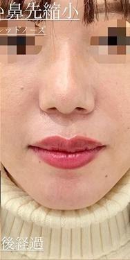 切らない鼻先縮小術の症例写真[アフター]