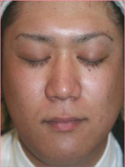 城本クリニックの医療レーザー脱毛の症例写真[アフター]