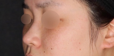 picoスポットそばかす治療の症例写真[アフター]