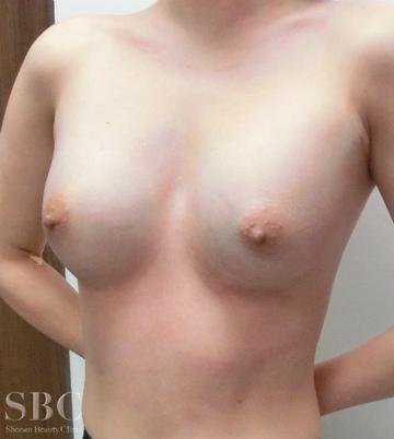 湘南美容クリニック 名古屋 栄院の豊胸手術(胸の整形)の症例写真[アフター]