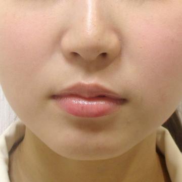 ドーズ美容外科の顔の整形(輪郭・顎の整形)の症例写真[ビフォー]