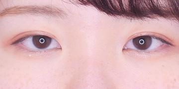 東京イセアクリニック 銀座院の目・二重の整形の症例写真[アフター]