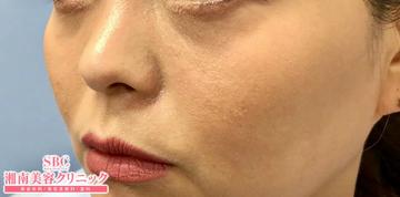 の顔のしわ・たるみの整形(リフトアップ手術)の症例写真[アフター]