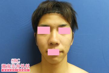 湘南美容クリニック 神戸院の鼻の整形の症例写真[ビフォー]