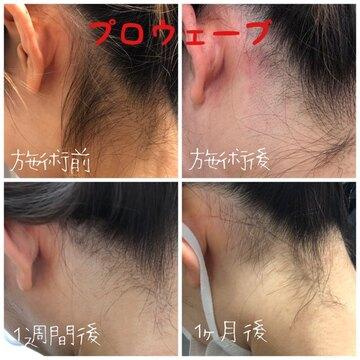 肌と歯のクリニック 東京ベイ幕張の医療レーザー脱毛の症例写真