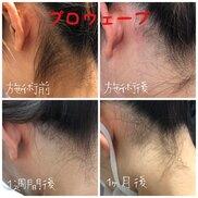 肌と歯のクリニック 東京ベイ幕張の症例写真