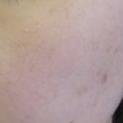 額のニキビ・ニキビ痕の治療[アフター]
