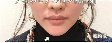 西宮SHUHEI美容クリニックの顔の整形(輪郭・顎の整形)の症例写真[アフター]