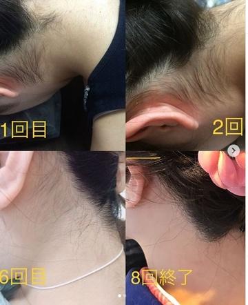 ドクター松井クリニックの医療脱毛の症例写真
