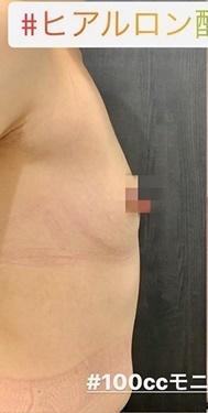 ルラ美容クリニック 高田馬場院の豊胸手術(胸の整形)の症例写真[ビフォー]