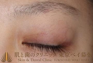 肌と歯のクリニック 東京ベイ幕張の薄毛治療の症例写真[アフター]