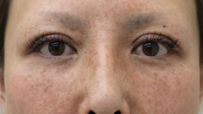 二重切開法(隆鼻術)の症例写真[アフター]