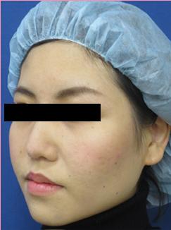 ■隆鼻術+鼻中隔延長+耳介軟骨移植[アフター]