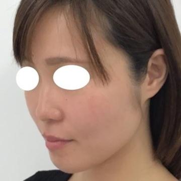 東郷美容形成外科 福岡のシワ・たるみ(照射系リフトアップ治療)の症例写真[ビフォー]