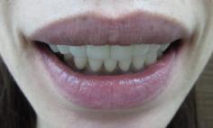 歯冠長延長術とセラミック法によるガミースマイル治療の症例写真の症例写真[アフター]