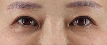 銀座長瀬クリニック 大阪院の目・二重整形の症例写真[アフター]